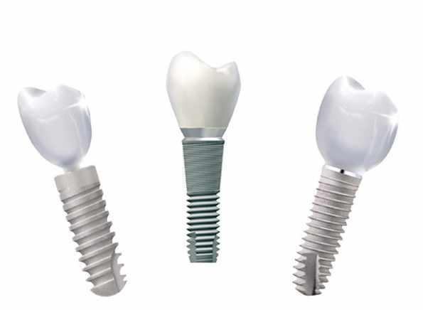 Zahnimplantate sind der hochwertigste Zahnersatz
